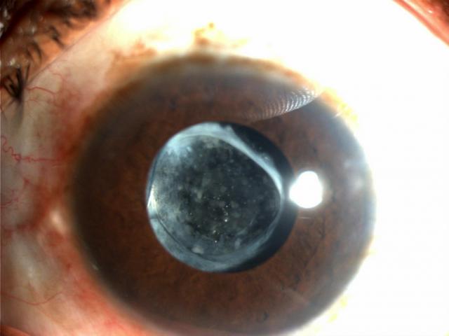 Can My Cataract Grow Back