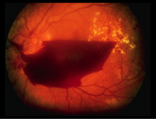 Lasers Treatment Diabetic Maculopathy