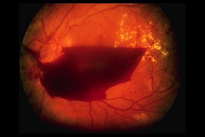 Laser treatment | diabetic retinopathy