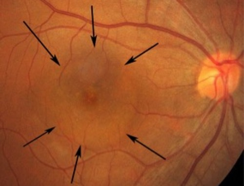 What is central serous retinopathy?